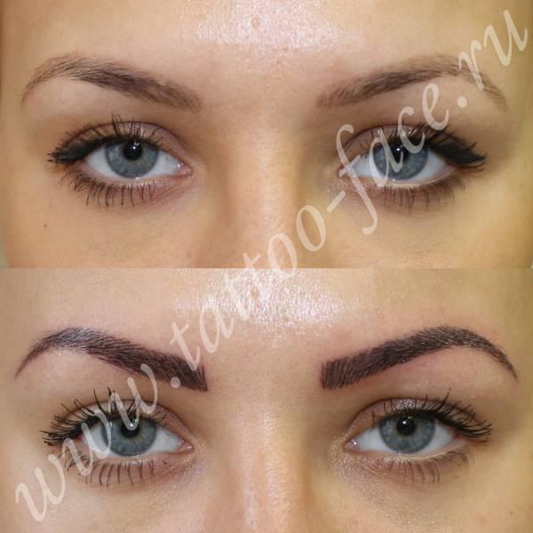Медицинский перманентный макияж в Москве – клиника
