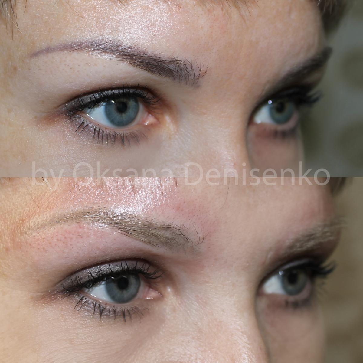 Удаление лазером перманентного макияжа фото